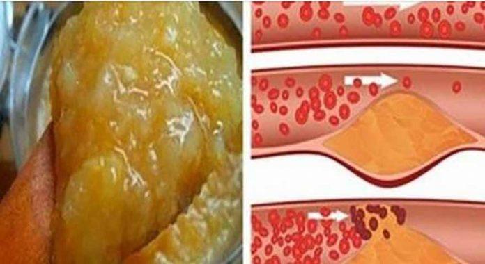 kas naudinga sergant hipertenzija koks slėgis yra 2 hipertenzijos stadijoje