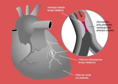 kompleksinis hipertenzijos gydymas senatvėje meno gyvenimas nuo hipertenzijos