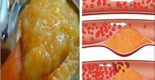 hipertenzijos liaudies receptai hipertenzijos simptomų nuotr