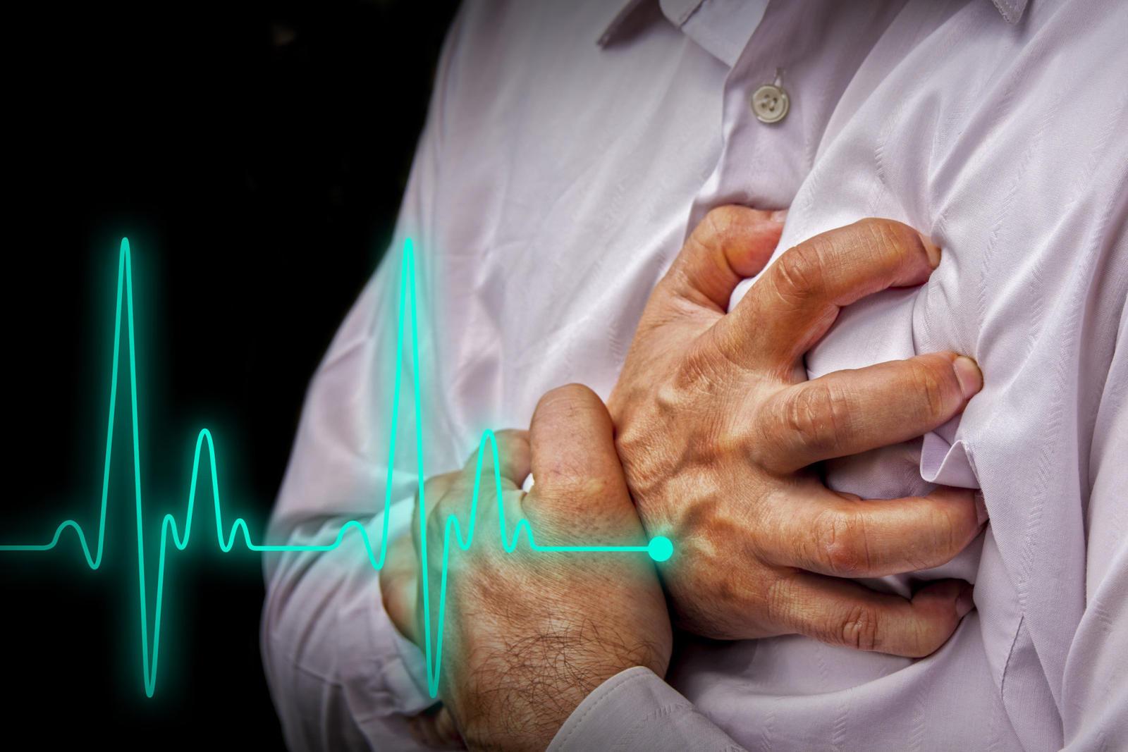 sveikatos problemos po infarkto koks slėgis turėtų būti 2 laipsnio hipertenzija