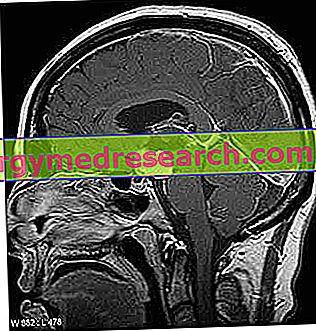 smegenų navikai ir hipertenzija kraujospūdis sumažėja esant hipertenzijai, ką daryti
