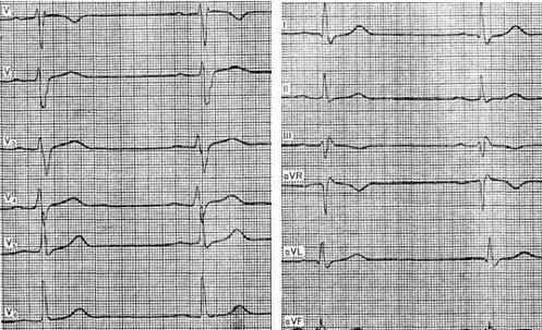 širdies priepuolio simptomai vyrų sveikata koks yra apatinis ir viršutinis hipertenzijos slėgis