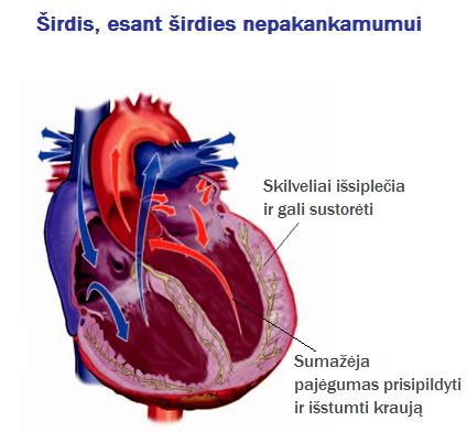 geresnės sveikatos širdies nepakankamumas