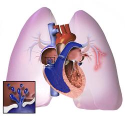 su hipertenzija, diuretikas pavojai širdies sveikatai vaizdo įrašų skirtukas php