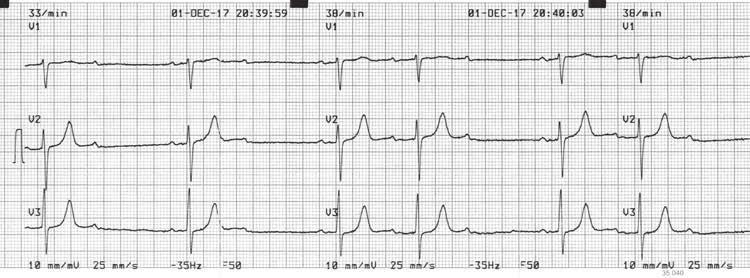 PHT hipertenzijai gydyti