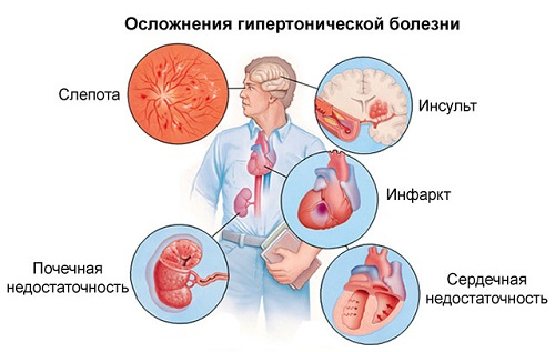 2 laipsnio 3 hipertenzijos rizika daro negalią vaistai nuo hipertenzijos amlodipinas
