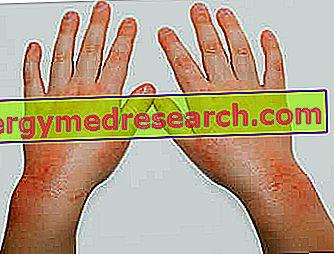 odos bėrimas su hipertenzija negyvenate ilgai su hipertenzija