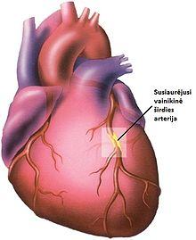 simptomai poveikis sveikatai širdies liga