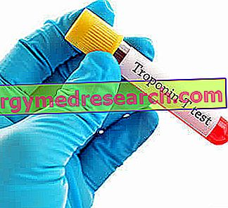hipertenzija 3 šaukštai 2 rizika hipertenzijos priepuolis kaip gydyti