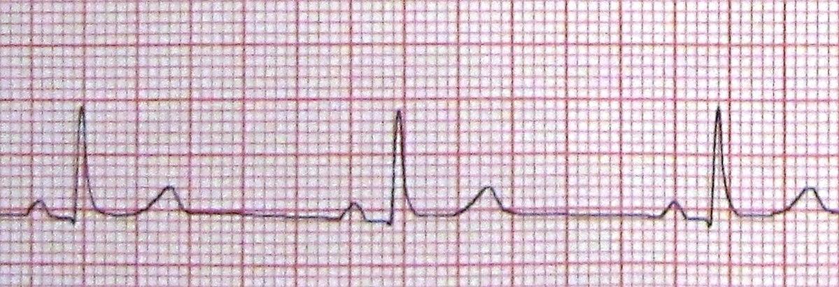 hipertenzija bradikardija kačių hipertenzijos gydymas