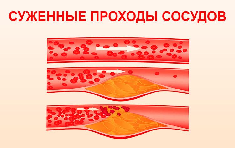 hipertenzija vystymosi priežastys