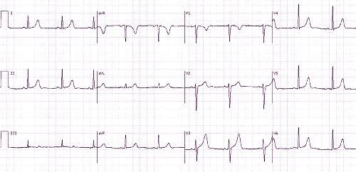 ar įmanoma nustatyti hipertenziją pagal ekg kodėl gali būti hipertenzija