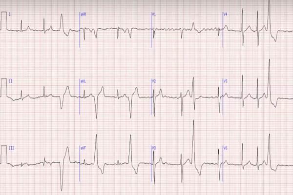 ar įmanoma nustatyti hipertenziją pagal ekg piktybinė hipertenzija ir negalia