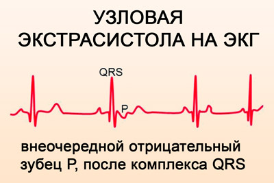 ar įmanoma nustatyti hipertenziją pagal ekg kas varva hipertenzija