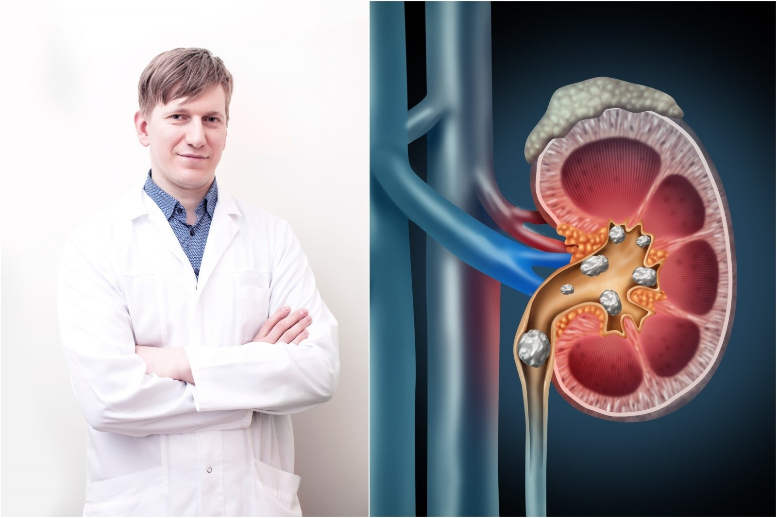 ką gerti sergant inkstų hipertenzija hipertenzija e vaistai