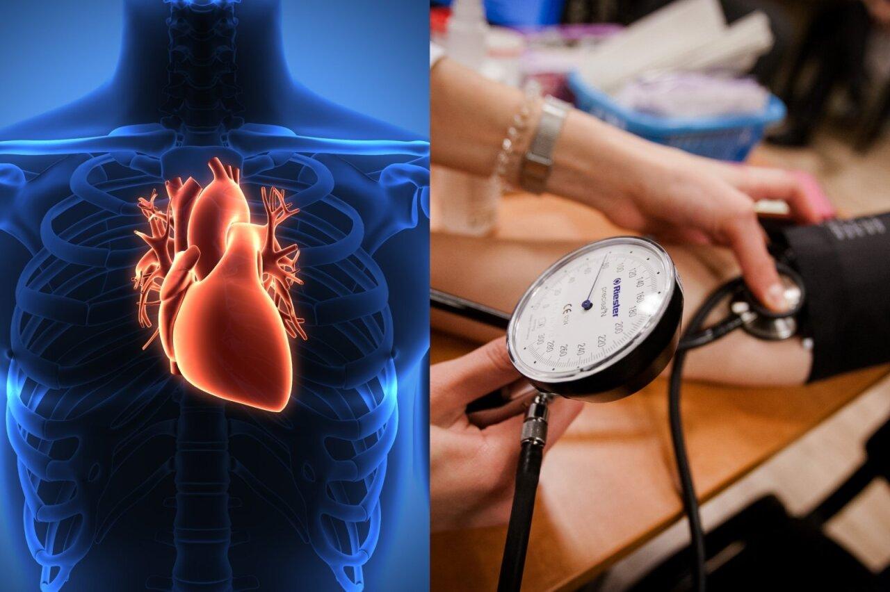 hipertenzija slėgis 1 laipsnis