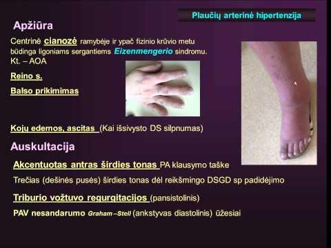 nugata geriausia malko hipertenzija pakitimai akyse su hipertenzija