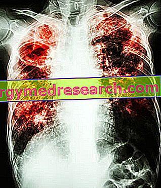 dešiniojo plaučio hipertenzija naujiena hipertenzijai gydyti