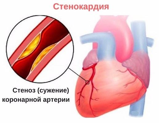 hipertenzija ir spazmalgonas jo stadijos hipertenzija