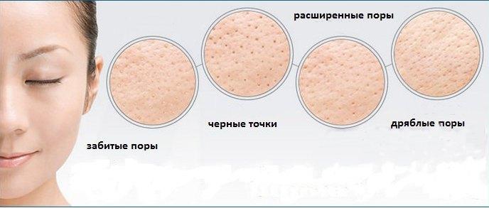 skausmas ausyje su hipertenzija eritrocitai šlapimo hipertenzijoje