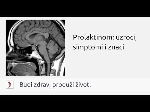 Akromegalija | vipcirkas.lt