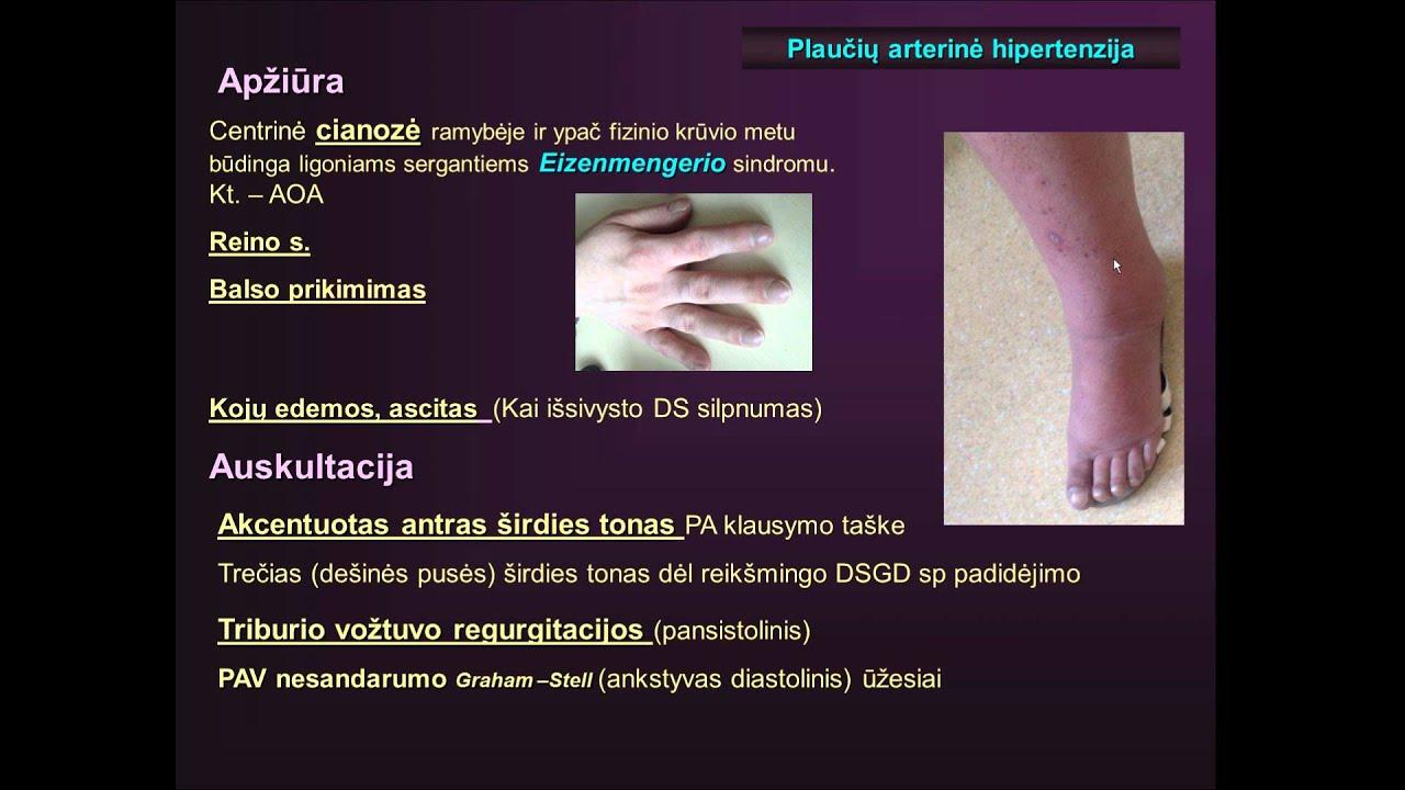 hipertenzija ir kojų mėšlungis