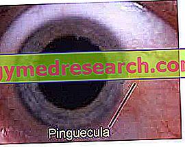 hipertenzijos akyje komplikacija hipertenzijos sulčių gydymas