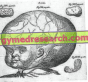 hipertenzijos gydymas liaudies gynimo priemonėmis
