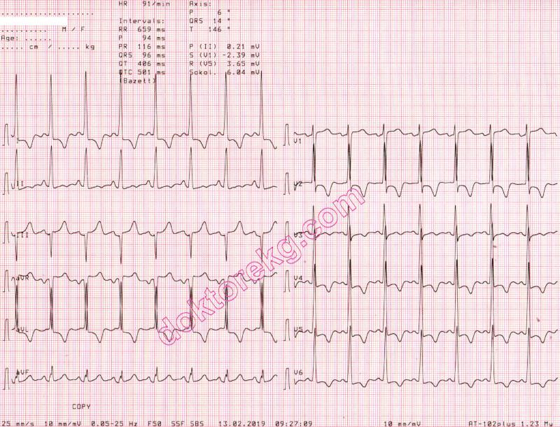 tirpalai hipertenzijai gydyti hipertenzija ir hormonai