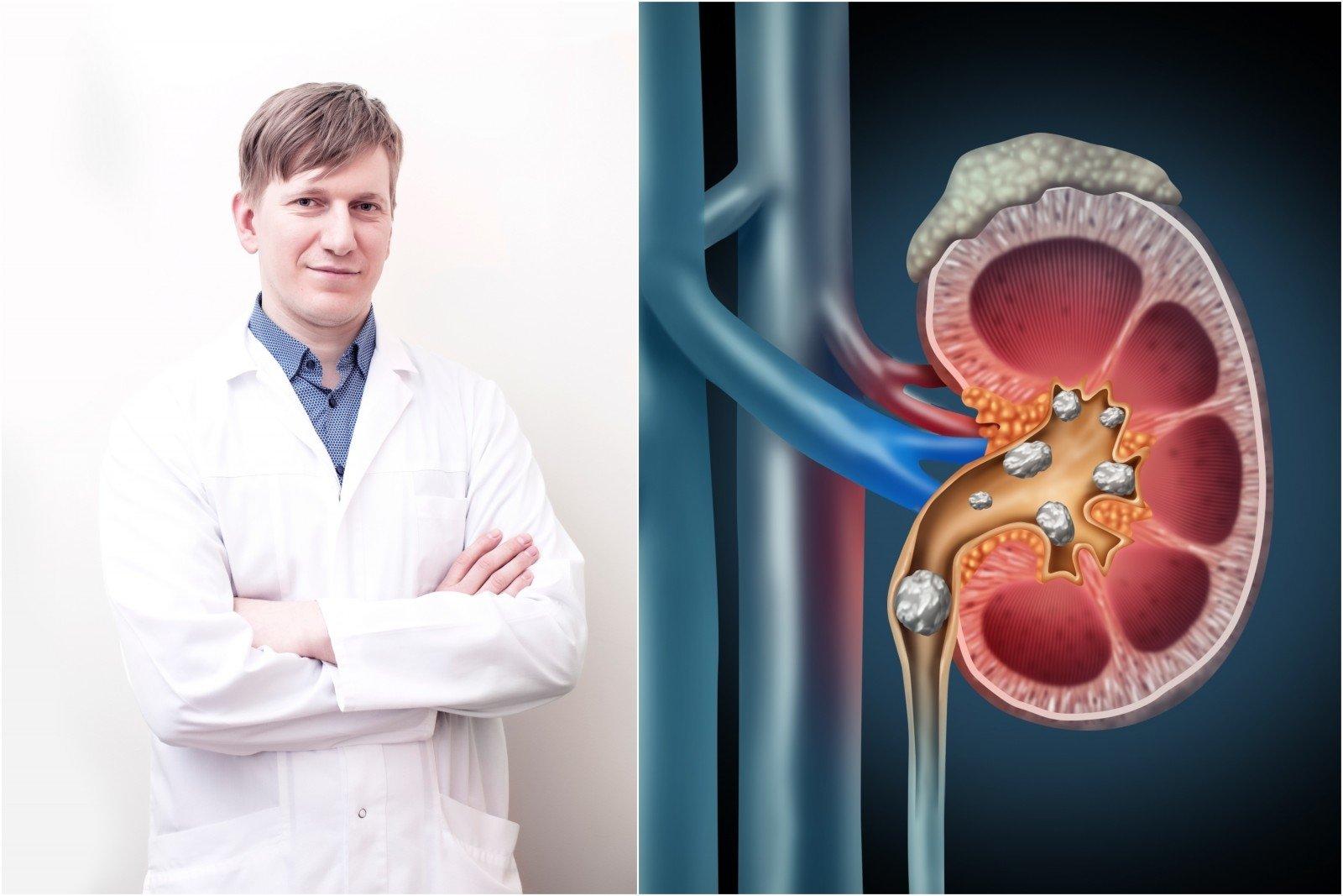 ką gerti sergant inkstų hipertenzija arterijų pokyčiai su hipertenzija