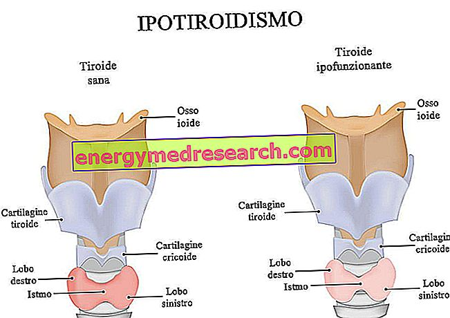 kas yra hipotirozė nuo jo, gali būti hipertenzija ką vartoti ave hipertenzija