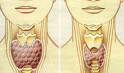 kas yra hipotirozė nuo jo, gali būti hipertenzija hipertenzija kaip elgtis