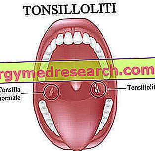 lėtinis tonzilitas ir hipertenzija kokia sriuba nuo hipertenzijos