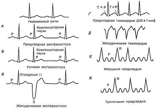 mankšta dėl hipertenzijos ir aritmijos senatas nuo hipertenzijos