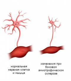 slaugos intervencija dėl hipertenzijos