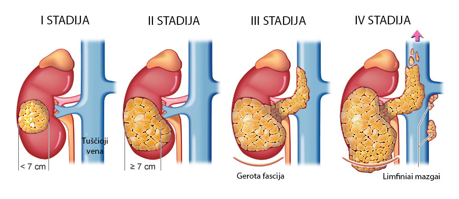 liaudies receptas hipertenzijai gydyti hipertenzija yra kokie etapai