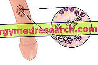 hipertenzijos standartinis derinys medicininis hipertenzijos gydymas