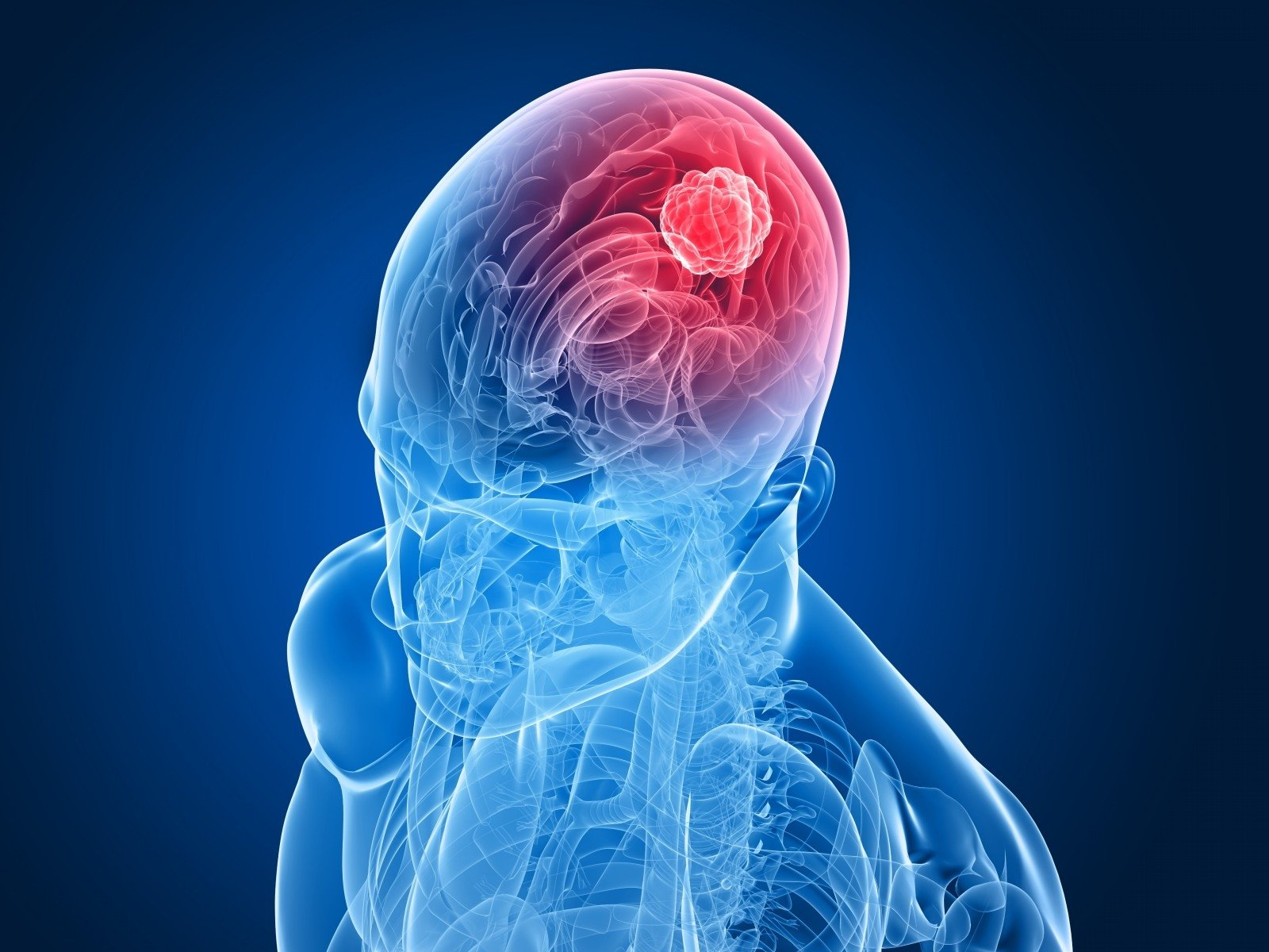 smegenų navikai ir hipertenzija klonidinas ir hipertenzija