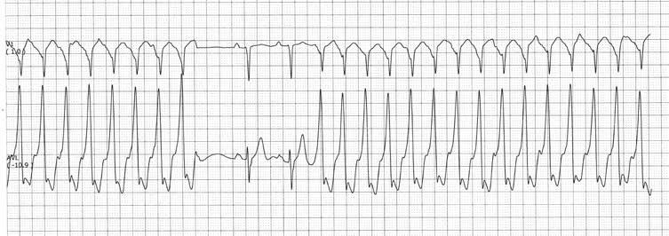 vaistai nuo hipertenzijos apžvalgos forumas kas daroma esant hipertenzijai