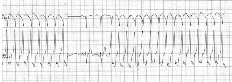 ką vartoti su tachikardija ir hipertenzija nėra didelė hipertenzija