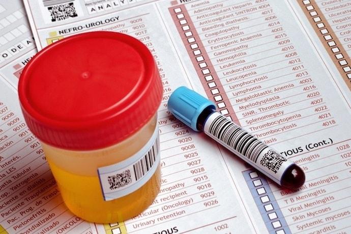 Kaip sumažinti spaudimą namuose: metodus ir patarimus - Aterosklerozė November