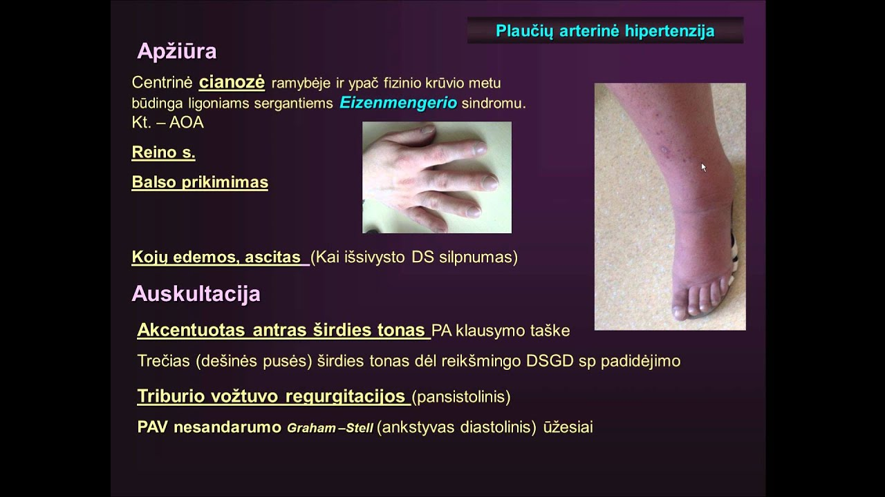 hipertenzija 1 etapas 3 etapas 3 rizika