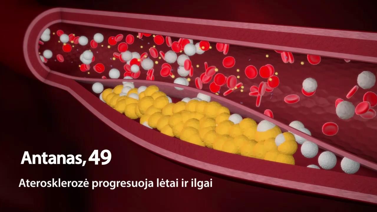 kaip progresuoja hipertenzija gudobelių infuzija nuo hipertenzijos